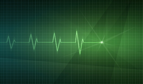 ECG skills: understanding the normal ECG trace