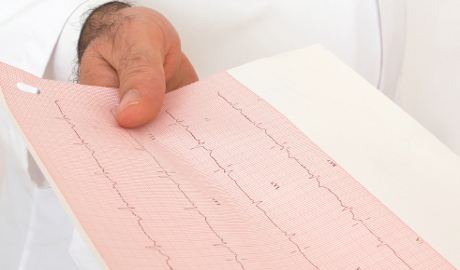 ECG interpretation in athletes: test your knowledge