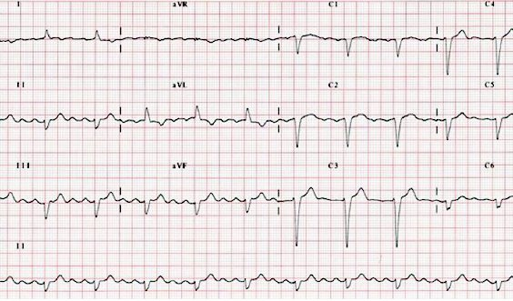 Basic practical skills: how to perform an ECG