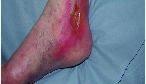 Ask an expert: Peripheral arterial disease