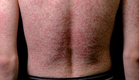 Quick quiz: Acute itchy rash