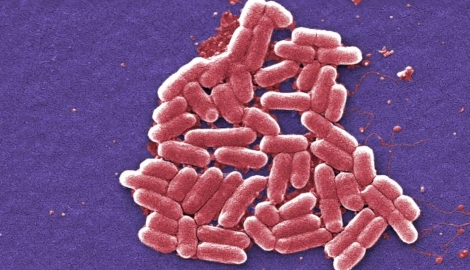 Bacterial food poisoning due to toxins