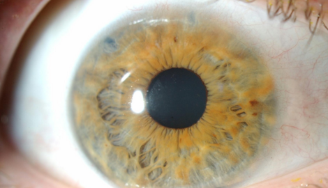 Glaucoma: diagnosis and management in primary care