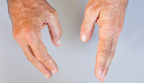 Hospital presentations: joint swelling