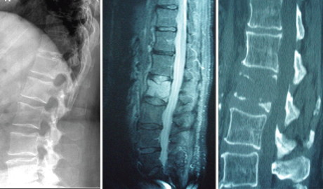Free module: Managing metastatic spinal cord compression