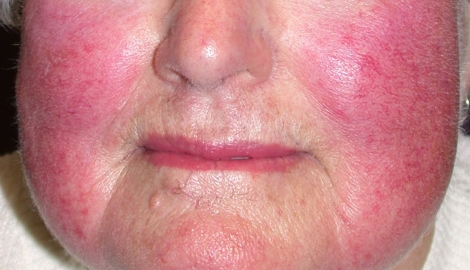 Rosacea: a guide to diagnosis and treatment