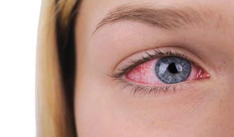 The red eye: diagnostic picture tests