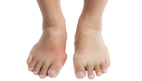 foods that prevent high uric acid effect of high uric acid on body gout treatment painkillers