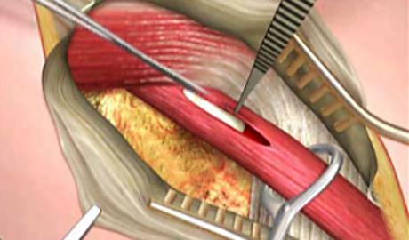 Surgical skills - open mesh repair of inguinal hernia