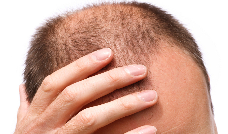 Alopecia: diagnostic picture tests
