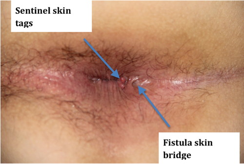 The anus growth near skin