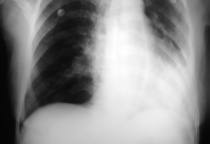 chest-x-ray-lung-collapse-consolidation-sarcoid-